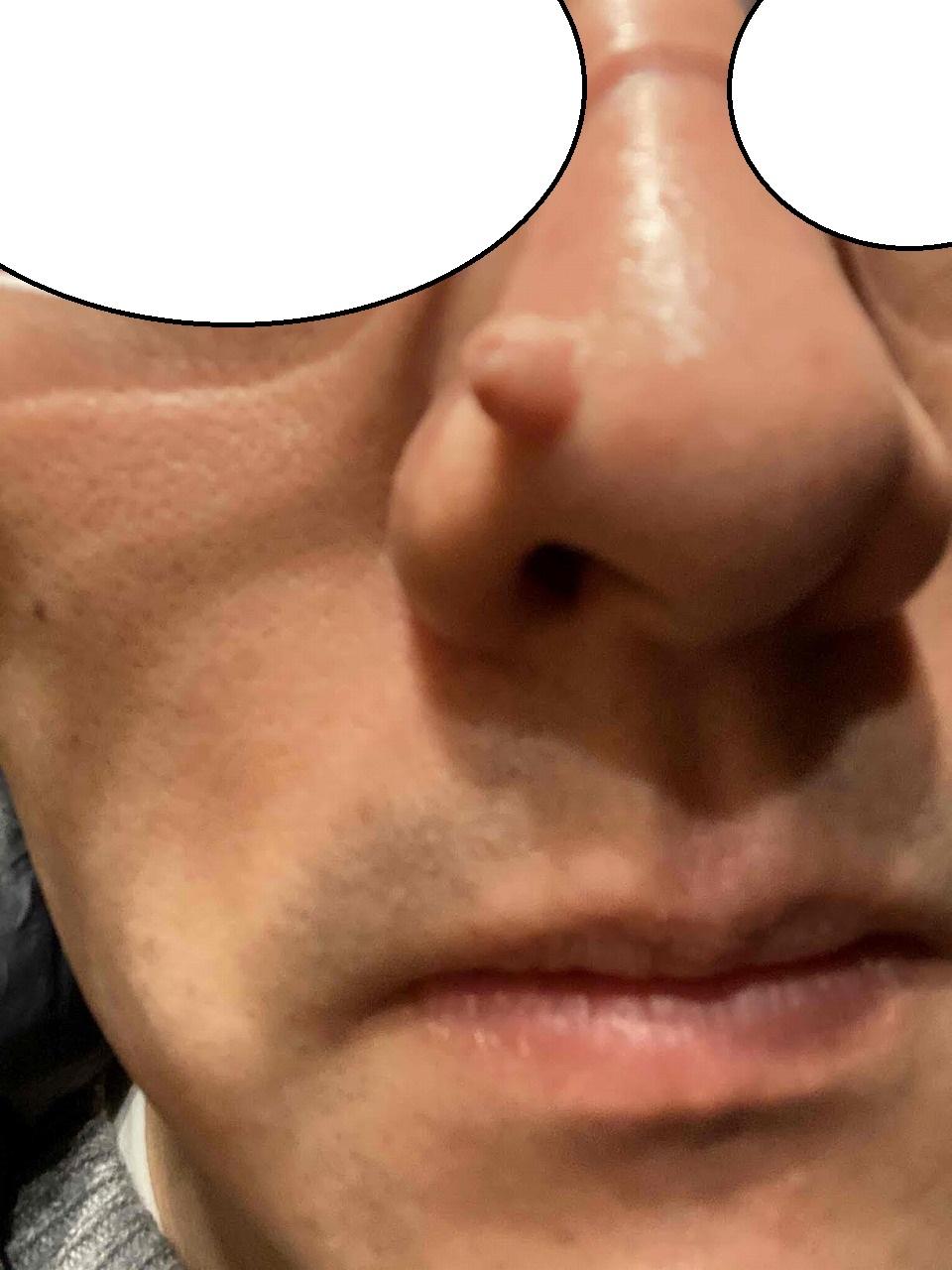 小鼻の大きいほくろの切除。1,5か月目の経過。