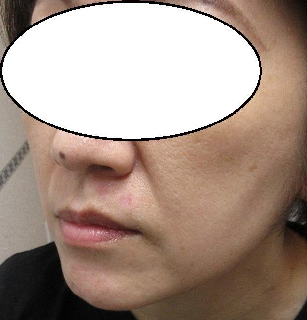 鼻の下の大きいほくろを2個切除。1,5か月目の経過。