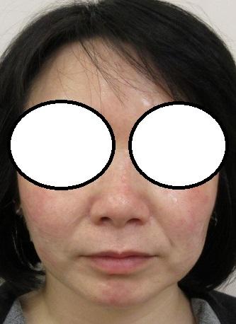 ウルトラセルQプラスシリーズ3回目直後+エラボトックス(1か月前) 丸顔がシャープになってきました。