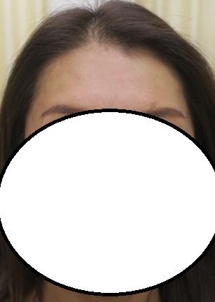 額にボトックスの練りこまれた美容針(T-TOX)を挿入。直後の状態。少しシワができにくくなりました。