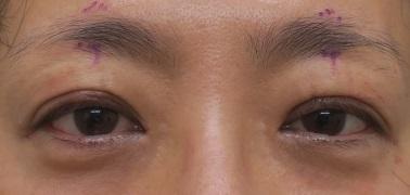切らない眼瞼下垂で黒目をパッチリに。直後の状態。腫れはかなり少ないですね。
