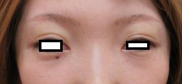 目の上のくぼみ(くぼみ目)に対して脂肪幹細胞上清液注入療法をさせて頂きました。直後の状態。