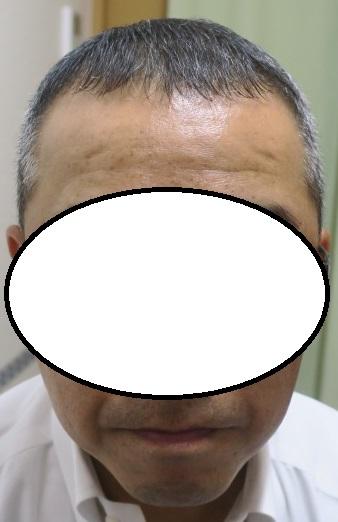 豊洲で薄毛(AGA)治療。9か月目の経過。だいぶ復活してきました。