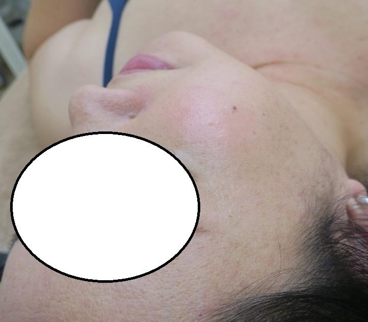 顔イボレーザー治療。5か月目の経過。きれいになってきました。