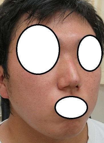 Gメッシュ4本による鼻筋形成、4か月目。本日はクレオパトラノーズ(ミスコ)4本で鼻尖形成、直後の状態。