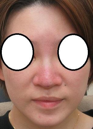 鼻筋の大量に入っているヒアルロン酸を溶解してGメッシュで鼻筋形成。直後の状態。
