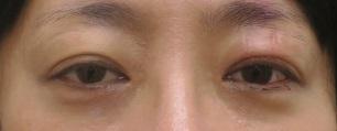 切らない眼瞼下垂5日目の経過。左だけ左右差出たので修正したその直後。