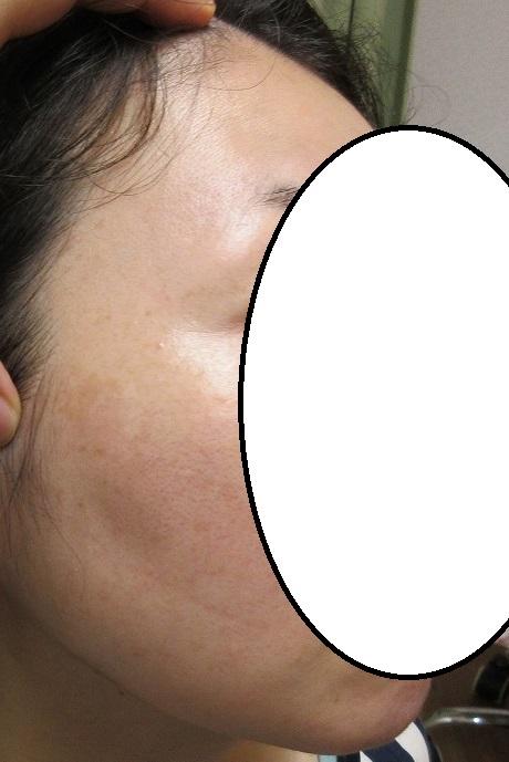 頬の目立つシミのレーザー治療の経過。1か月目。ゼオスキンのついに取り扱いを開始します。