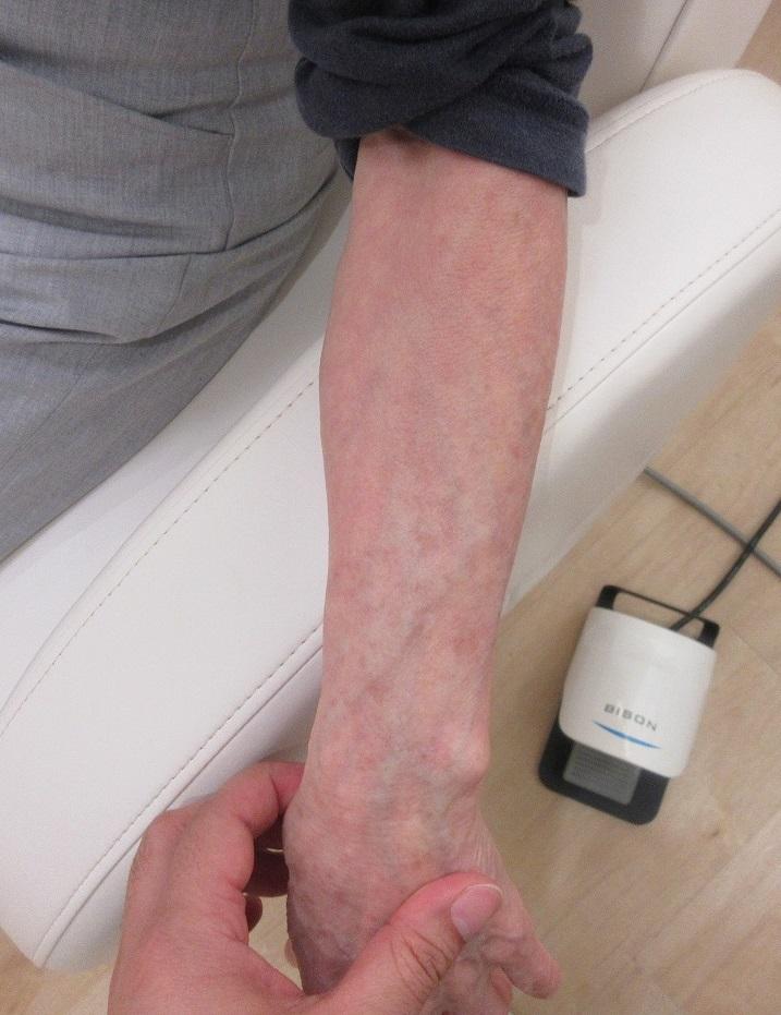 腕のシミのレーザー治療。1年目の経過。