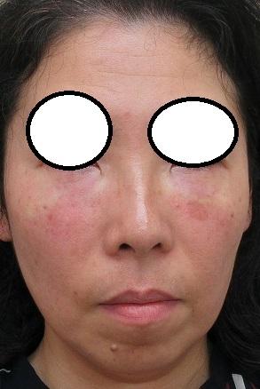 目の下のクマの手術プレミアム法。直後の状態。