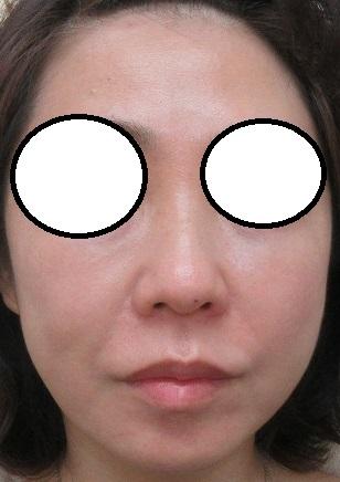 頬へのヒアルロン酸注入(他院糸リフト後の修正)。1か月目の経過。