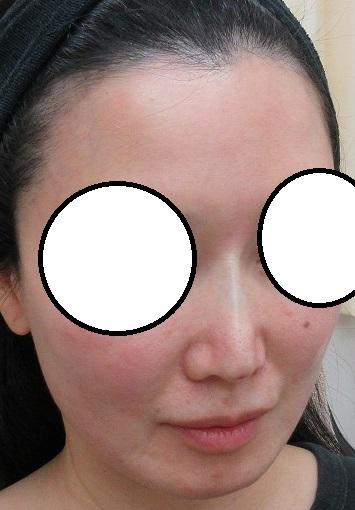 Gメッシュによる鼻筋形成。直後の状態。