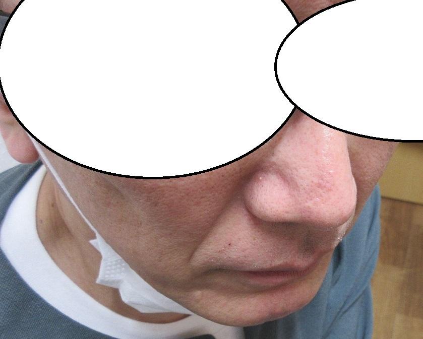 鼻先の濃いしみのレーザー治療。4か月目の経過。