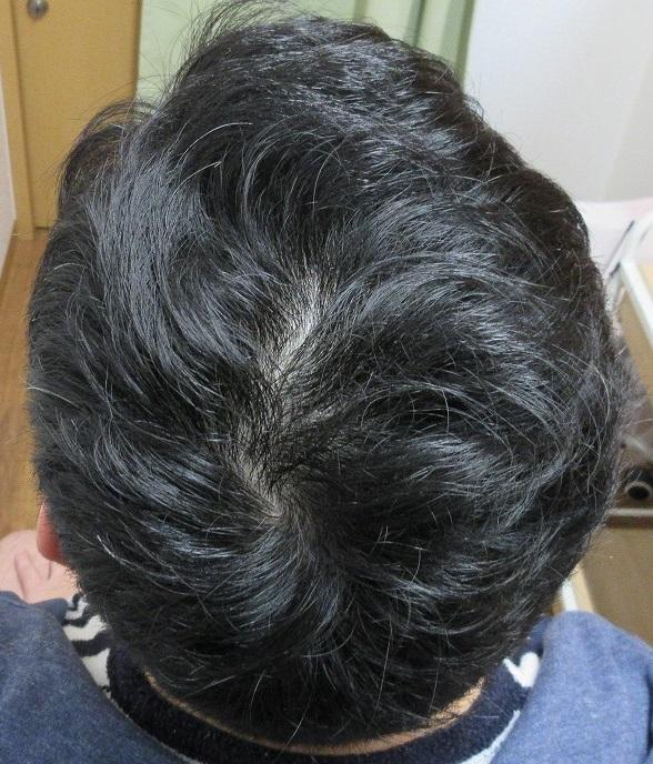 豊洲で薄毛(AGA)治療。3年目の経過。