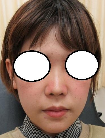 鼻筋を溶ける糸で形成。OMEGA VL4本(Gメッシュよりも安価で効果もしっかりと出ますよ)。直後の状態。