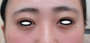 韓国式二重埋没法(6点留)。直後の腫れ具合。