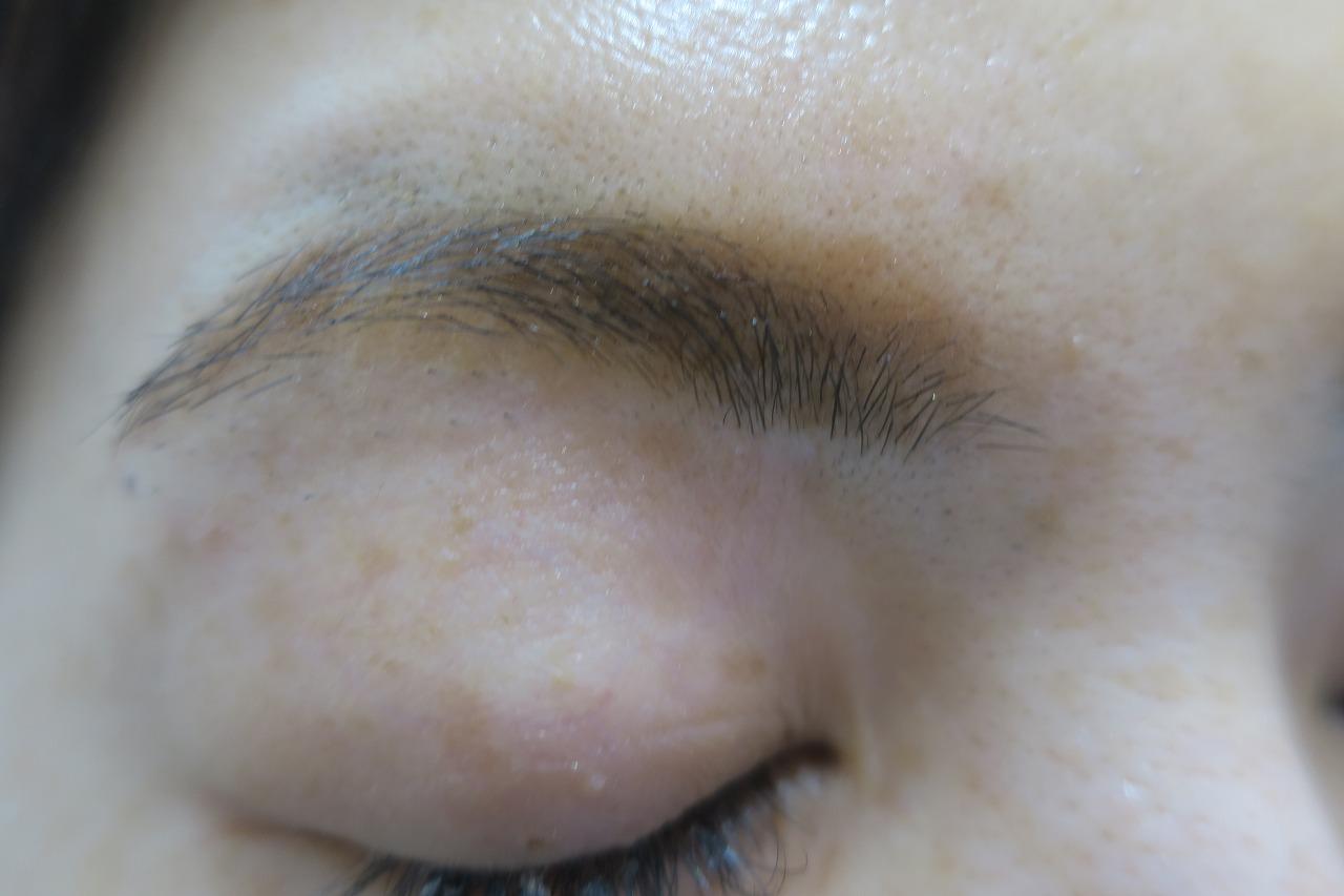 眉下の6ミリ大のほくろを切除しました。1年9か月目の経過。傷はわかりませんね。