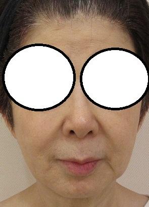 60代後半女性。1年10カ月でウルトラセルQプラスシリーズを6回受けてくださいました。