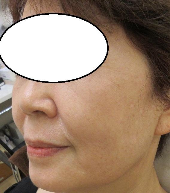 頬のシミのレーザー治療。1か月半目の経過。
