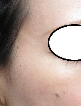 顔のイボレーザー治療。2回施行。その経過。