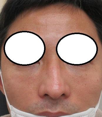 むくみにくいヒアルロン酸(アルジェネス)による目の下の注入療法。9ヶ月目の経過。