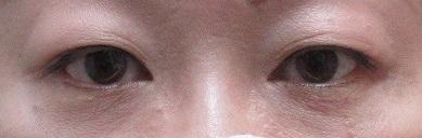 切らない眼瞼下垂手術。1か月目の経過。