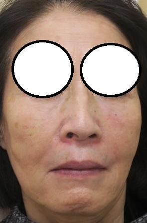 ヒアルロン酸4本で顔全体を若返らせました。直後の変化。70代女性。