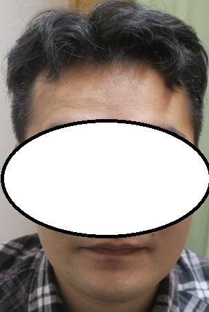 30代男性。豊洲でAGA治療。内服と外用だけでここまで改善しました。2年目の経過。
