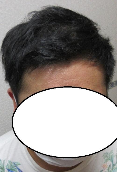 豊洲で薄毛治療(AGA治療)。ドットヘア内服外用。4年目の経過。
