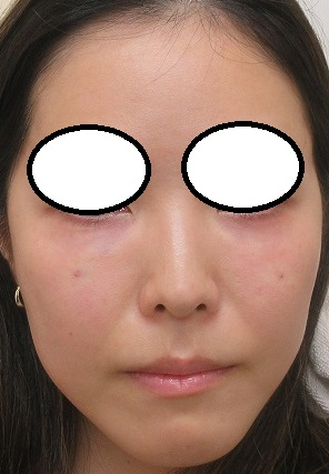 目の下のクマの手術(プレミアム法)。直後の状態。