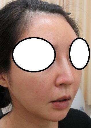 鼻筋がスッとなりました。鼻筋形成用の糸OMEGA VLを4本挿入しました。直後の状態。