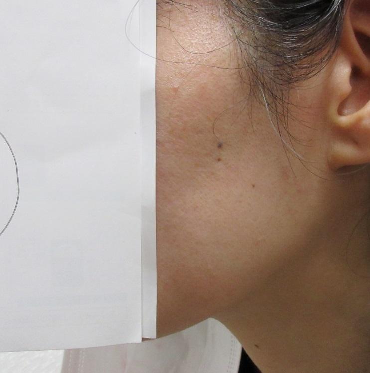 顔のイボイボが1回の治療でここまで改善しました。2か月目の経過。