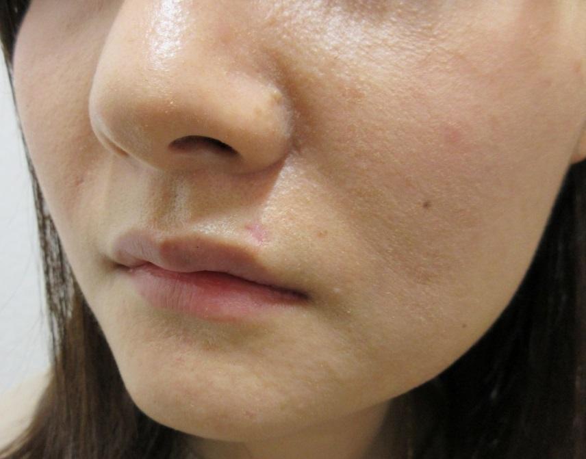 鼻下やアゴのホクロを切除しました。2か月目の経過。