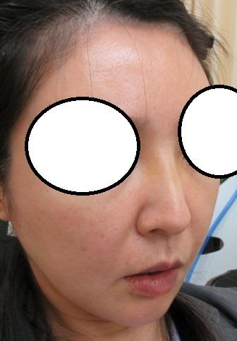 糸で鼻筋形成。OMEGA VL 4本挿入後の3日目の経過。きれいな鼻筋になってきていますね。
