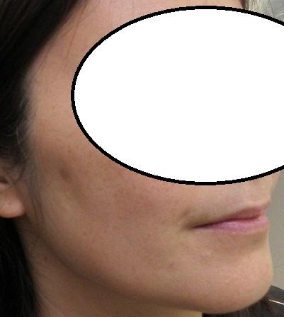 大きなシミのレーザー治療の経過。2か月半目。