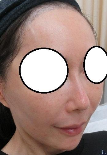糸による鼻筋形成、5か月目の経過。