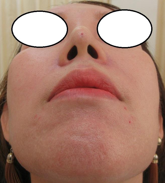 糸による鼻の形成。過去数回の経過。Gコグノーズ2本、直後の状態。