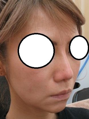 鼻筋がスッとして自然な高さが出ました。1年半目の経過+本日直後の状態。OMEGA VLかなりいいです。