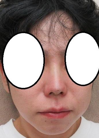 オメガVL+クレオパトラノーズ(ミスコ)のコンビネーションによる鼻尖形成・隆鼻術。直後の状態。