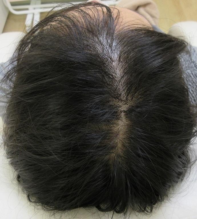 20代前半女性。メソセラピー8回目の経過(7か月目)