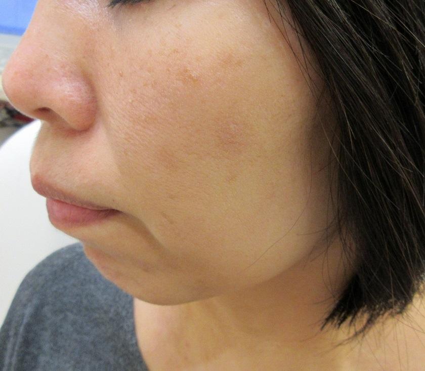 頬の大きなシミのレーザー治療。1.5か月目の経過。だいぶ薄くなってきています。