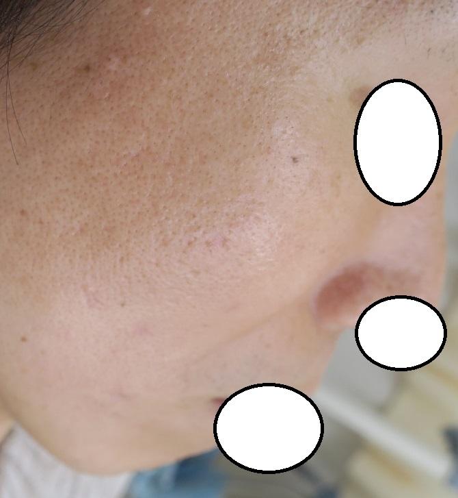 多発する脂腺増殖症を1個1個切除しました。3か月目の経過。