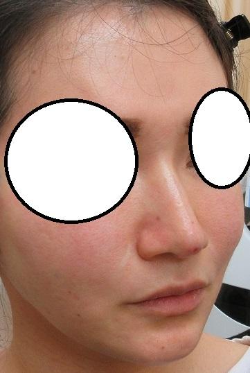 糸による鼻筋形成。Gメッシュ1本挿入。直後の状態。