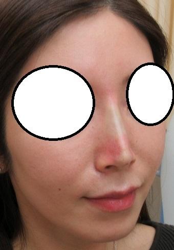 糸による鼻筋形成(オメガVL)4本。直後の状態。