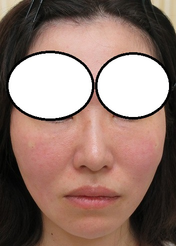 セルフロックプラス(長持ちするPCL素材)4本ずつ+目の下のベビーコラーゲンの経過。直後の状態。