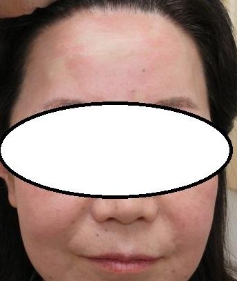 脂肪幹細胞上清液で額のシワが薄くなりました。つやつやです。