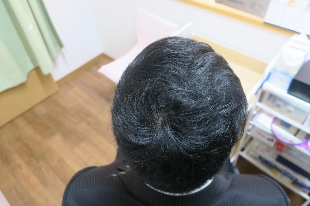 つむじのところの薄毛~2年2か月経過しても継続することによっていい状態をキープできています。