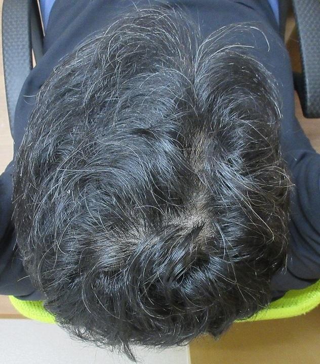今月の院長の頭皮。