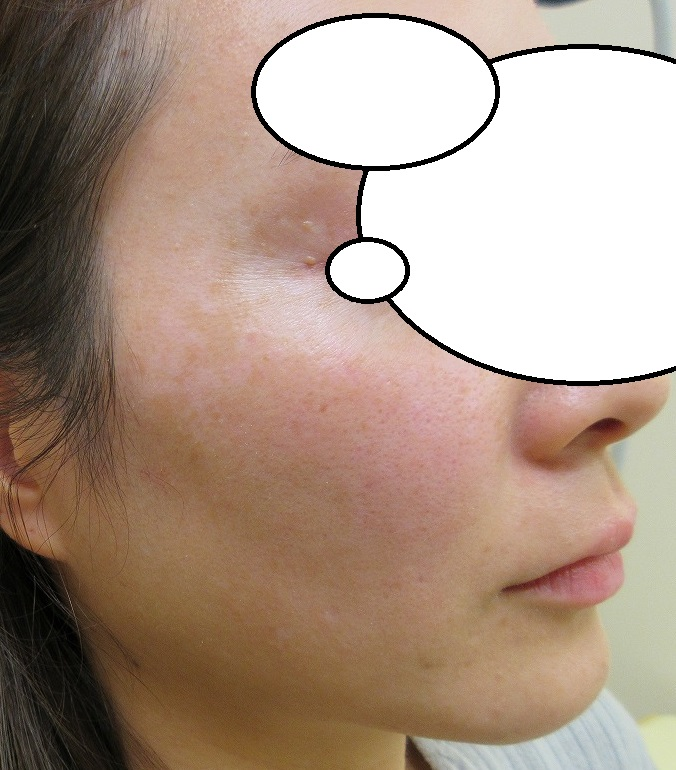 細かい多発する濃いしみのレーザー治療。2週目の経過。