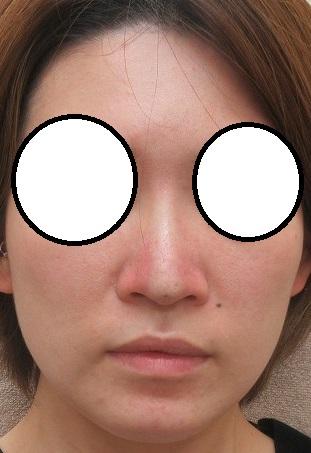 典型的なヒアルロン酸鼻の修正。ヒアルロン酸溶解(ハイラックス使用)Gメッシュ4本(今回はクレオパトラノーズ4本で鼻尖形成・直後の状態)